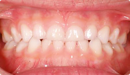 child_orthodontics_img2